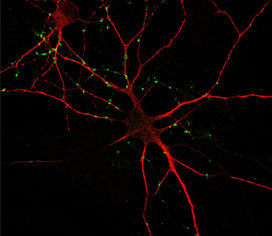 humanipscneuron